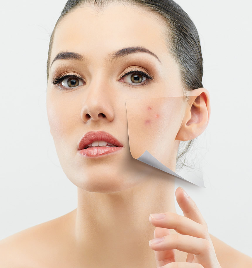 acne-treatment-for-oily-skin